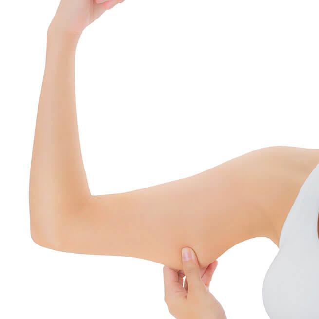 Lifting des bras Tunisie - Clinique Liposuccion Tunisie