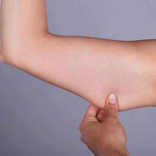 prix liposuccion bras tunisie